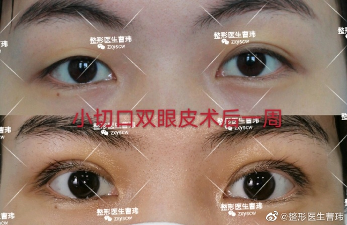 武汉同济双眼皮修复曹玮技术怎么样?