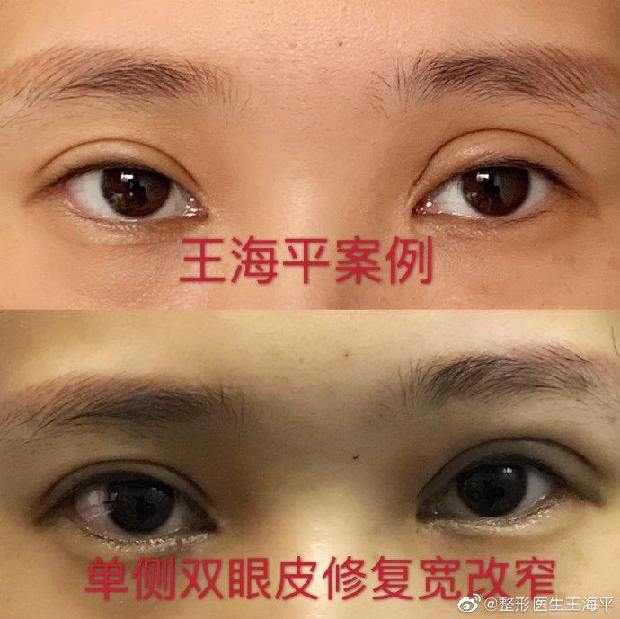 武汉专门修复双眼皮专家哪个最好?