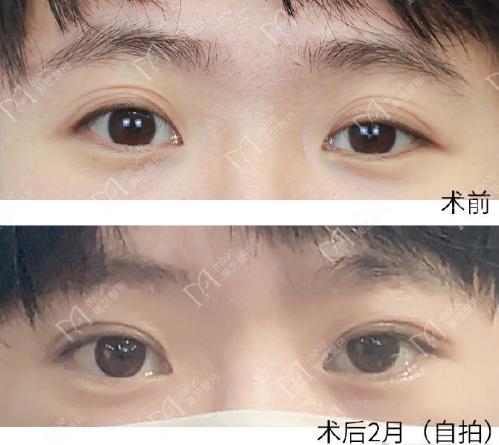 孔宇双眼皮修复案例