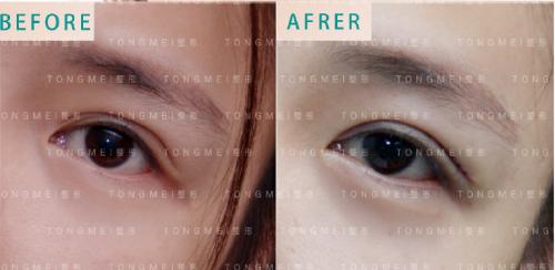 全国有名的双眼皮修复专家十大预约排行榜