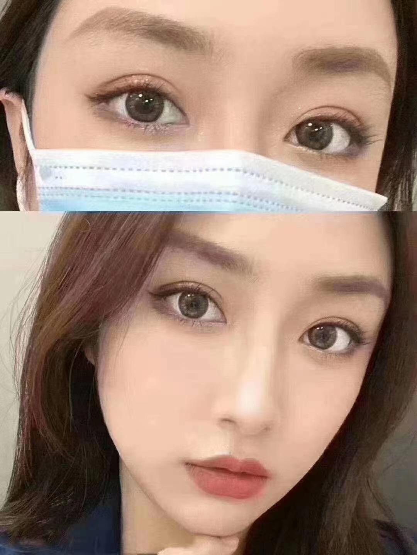 郑州哪个医生做双眼皮手术最好?郑州双眼皮医生预约排名