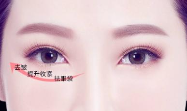 上海九院眼袋切除哪个医生做的最好?