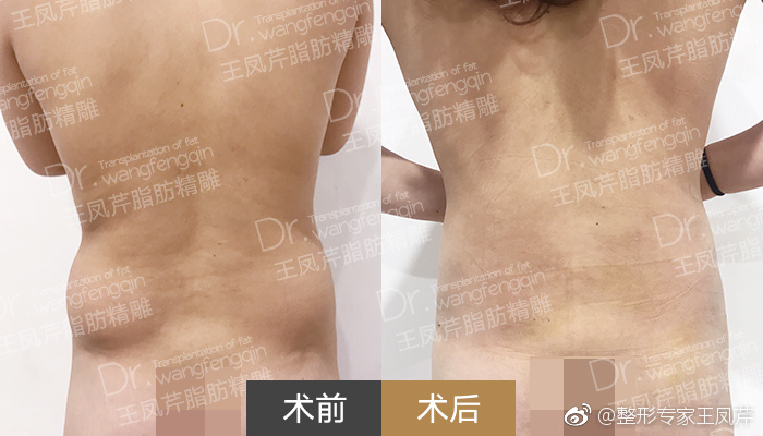 王凤芹腰部吸脂案例