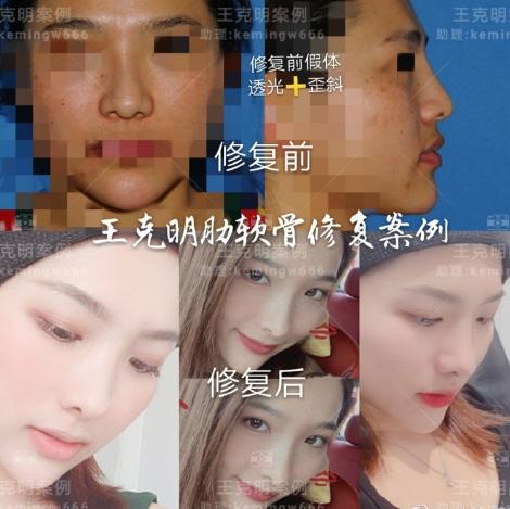 北京八大处最好的隆鼻医生是谁?