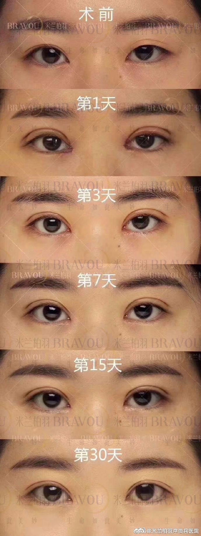 卢尚兵双眼皮修复案例