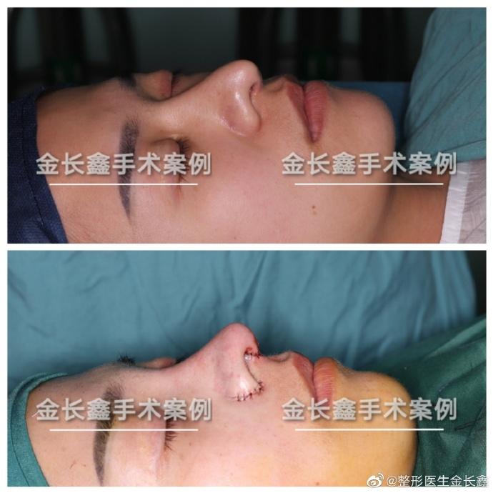 金长鑫鼻修复案例