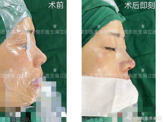 蒋立鼻修复案例