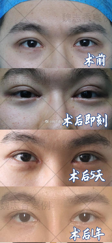 魏志香眼部修复案例