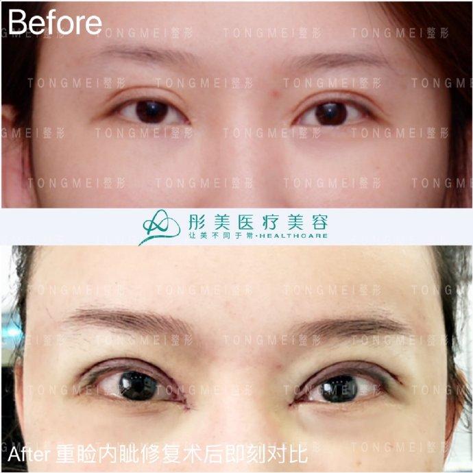 刘风卓眼部修复案例