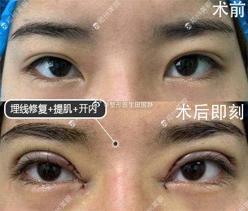 田国静眼部修复案例