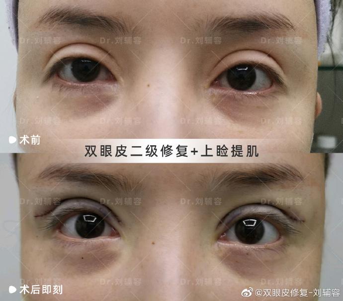 刘辅容眼部修复案例