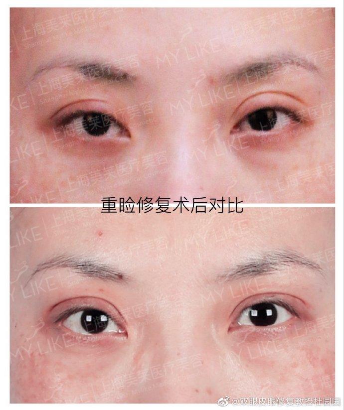 杜园园眼部修复案例