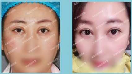 王振军眼睛修复案例