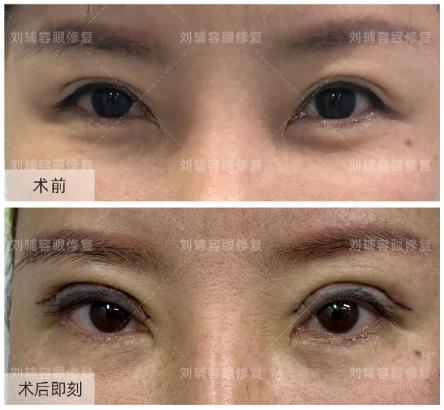 王振军和刘辅容哪个眼睛修复好?