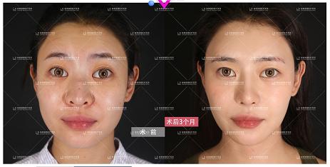 中国做鼻子比较出名的医生有哪些?