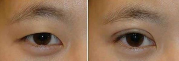 福州双眼皮修复最好的医生是哪个?福州眼修复医生排名预约