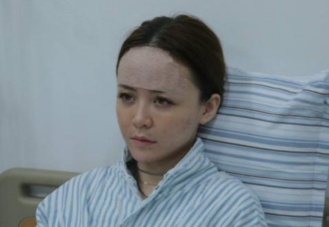 上海自体脂肪填充专家有哪些?上海脂肪填充医生预约排名