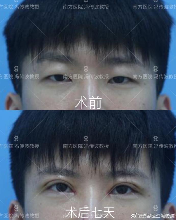冯传波双眼皮案例