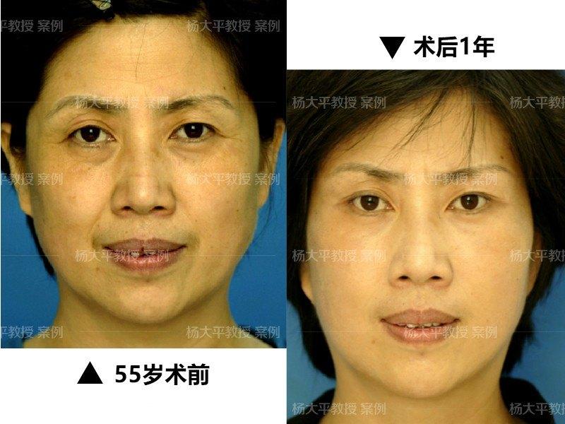 国内SMAS除皱提升的专家有哪些?中国除皱医生预约排行榜