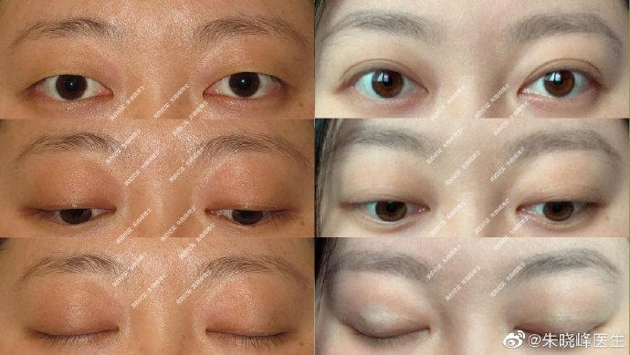 朱晓峰双眼皮案例