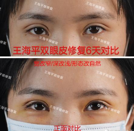 武汉做双眼皮修复最好的医生有哪些?