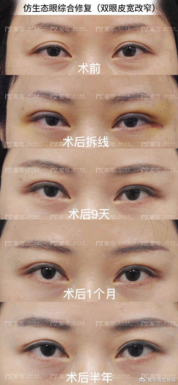 杨蓉双眼皮修复案例