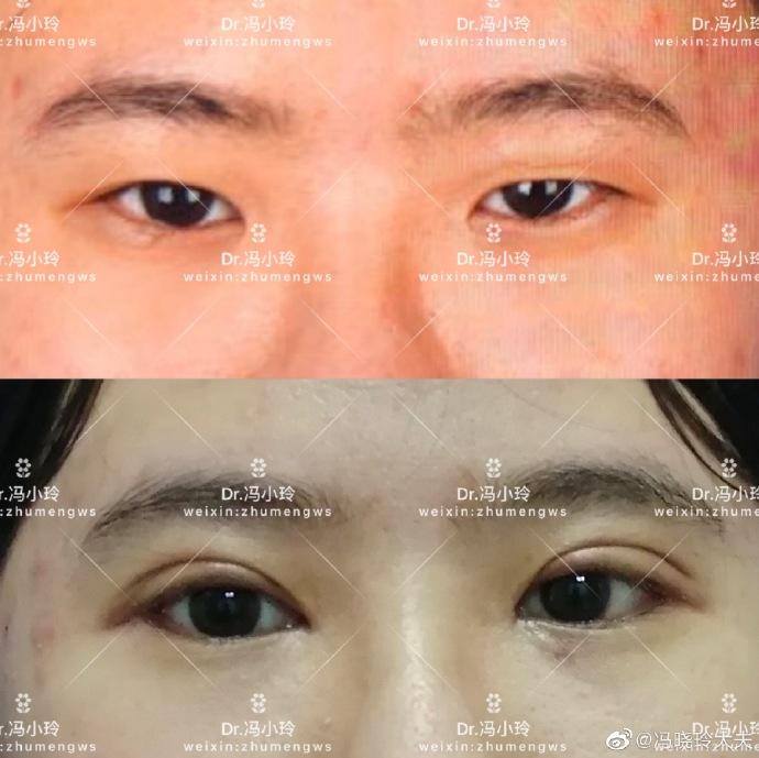 冯晓玲双眼皮案例
