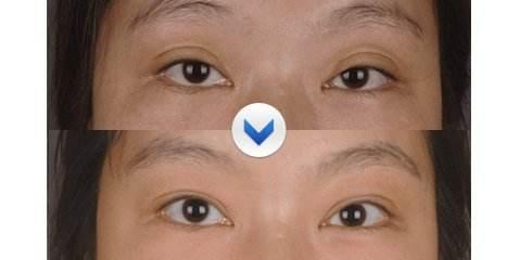 武汉修复双眼皮冯晓玲技术怎么样?