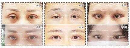 张冰洁双眼皮修复案例