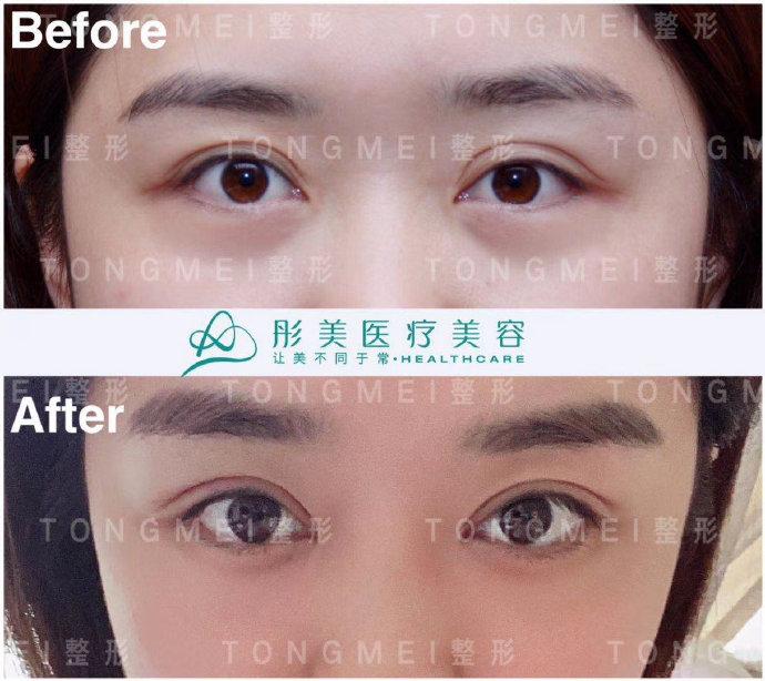 北京修复双眼皮最厉害的医生是谁?