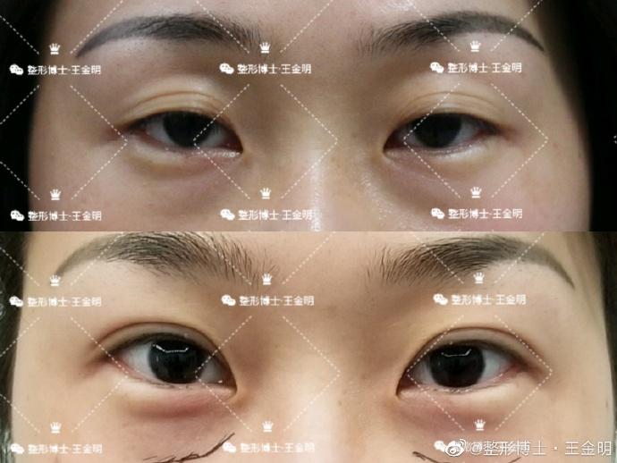 南京李俊和王金明祛眼袋哪个好?王金明李俊案例对比预约
