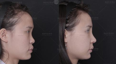 中国做鼻子比较好的医生有哪些?