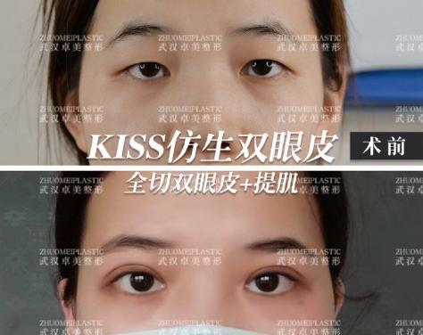 武汉双眼皮做的很好的医生有哪些?武汉双眼皮医生预约排名