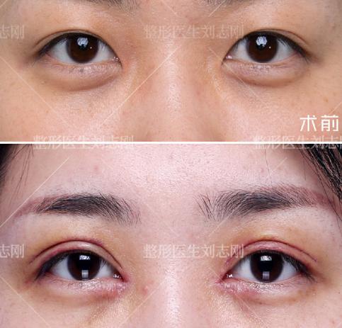 西安雙眼皮修復最好的醫生 西安眼修復專家排行榜預約