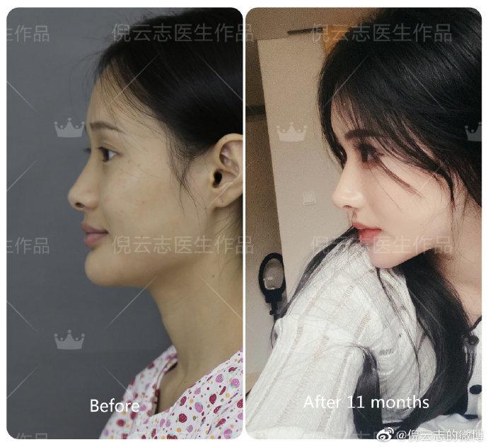 倪云志隆鼻案例