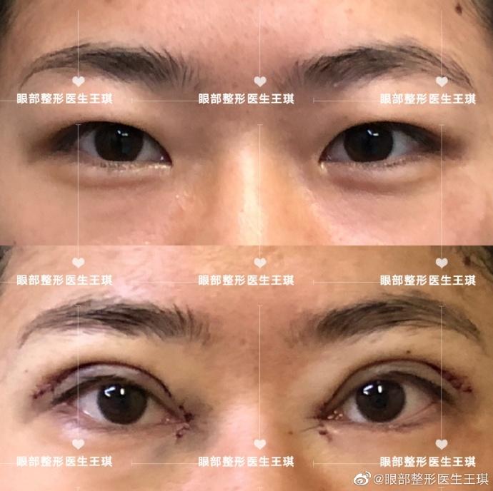王琪双眼皮案例