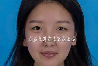 刘桂莲双眼皮案例