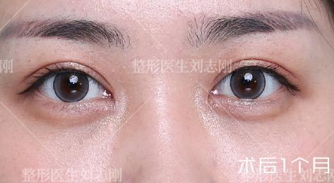 国内修复双眼皮权威专家排名 国内修复双眼皮权威医生排行榜2020