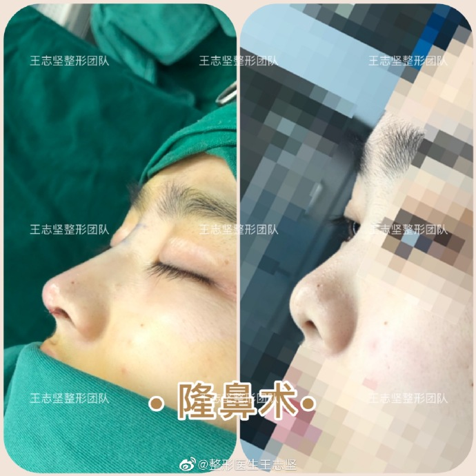 王志坚鼻修复案例