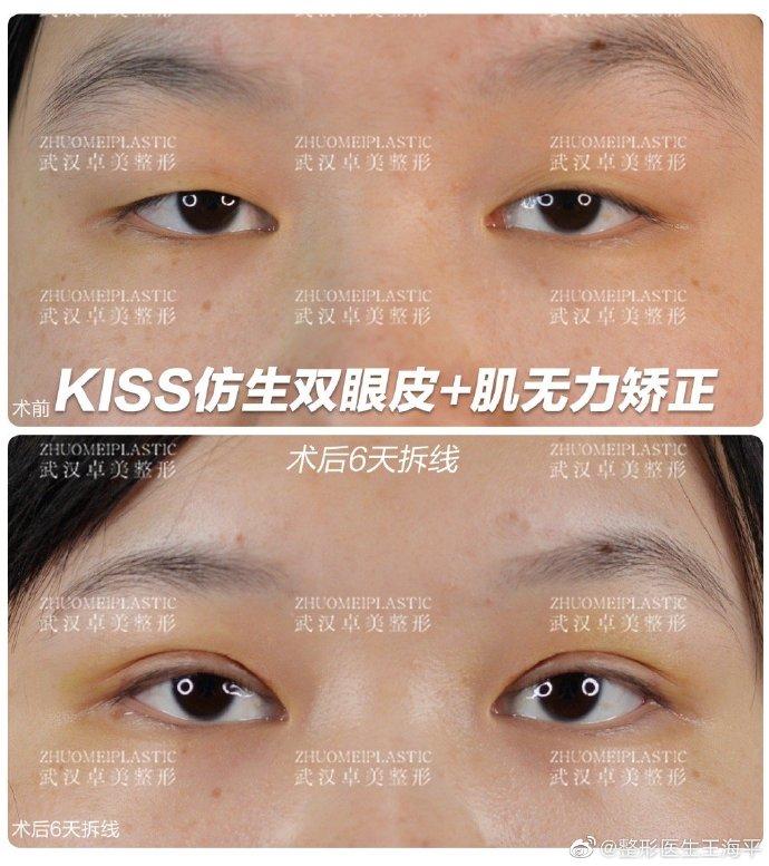 王海平双眼皮案例