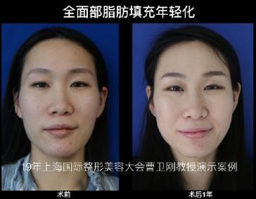 上海九院做脂肪填充好的医生:曹卫刚和张路谁技术口碑好?