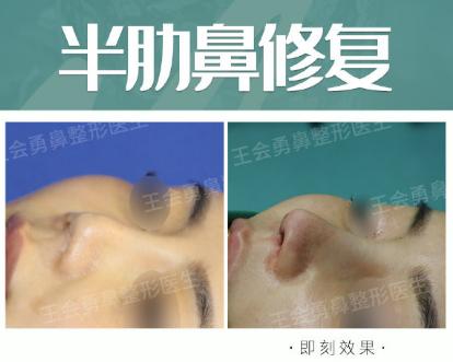 2020年上海鼻修复专家排名 2020年上海鼻修复医生排行榜