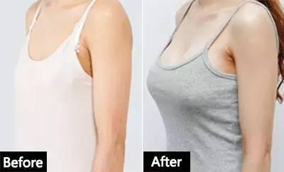 上海九院自体脂肪隆胸哪个医生最好?九院隆胸专家预约