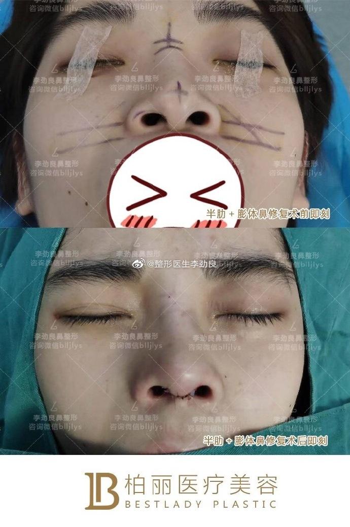 李劲良鼻修复案例