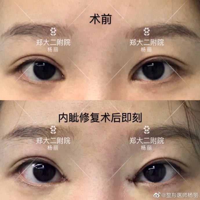 杨丽修复双眼皮案例