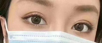 福州双眼皮整形厉害的医生有哪些?预约排名