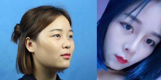 上海九院哪个医生做鼻部修复手术好?九院隆鼻修复专家排名