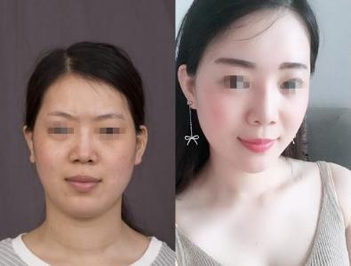 上海脂肪填充最好的医生预约排行榜