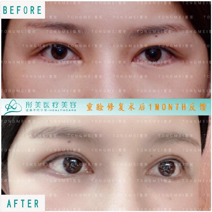 2020年北京眼修复专家排名 2020年北京眼修复医生排行榜