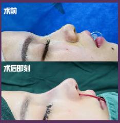 深圳知名鼻综合专家是谁?深圳知名鼻综合医生预约排名